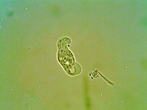 Attractive amoeba