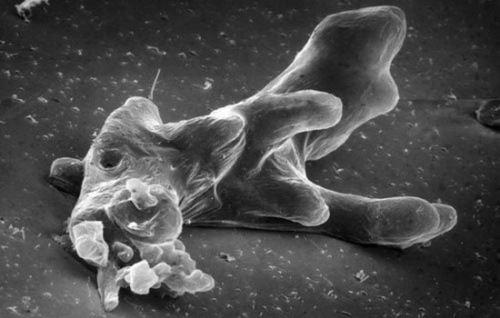 Pretty amoeba