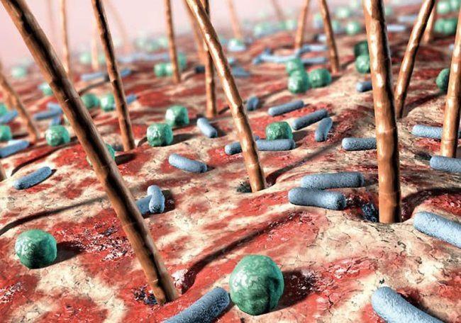 Interesting bacteria