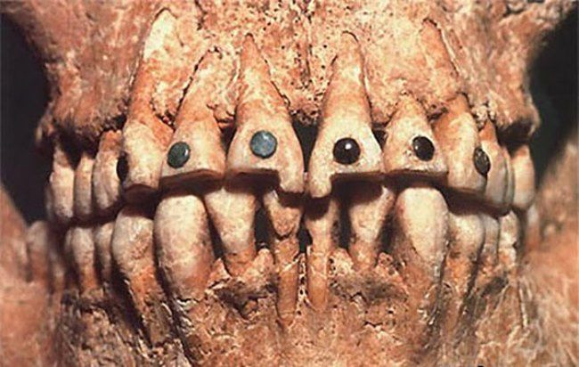 Ancient decorated teeth