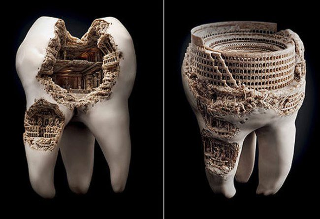 Teeth art